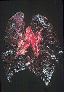 cialis tadalafil information drug description uses side
